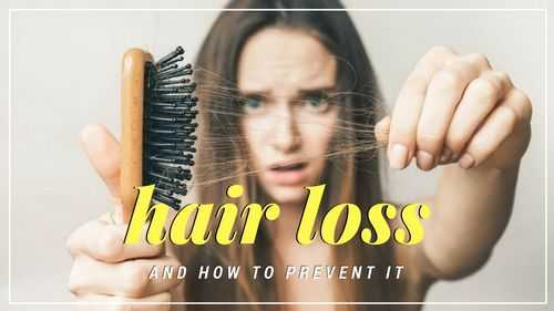 can you prevent hereditary hair loss