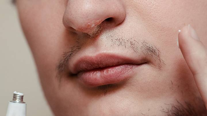 Nasal herpes - if herpes affects the nose, zava