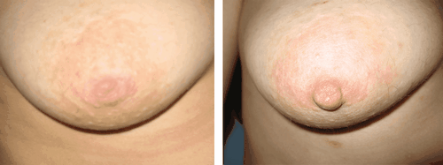 Nipple correction: methods, treatment procedure - cost